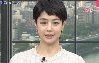 (疑惑)夏目三久アナの目がオカシイ☆2ch「整形失敗」「ストレスだろ」(写真22枚)